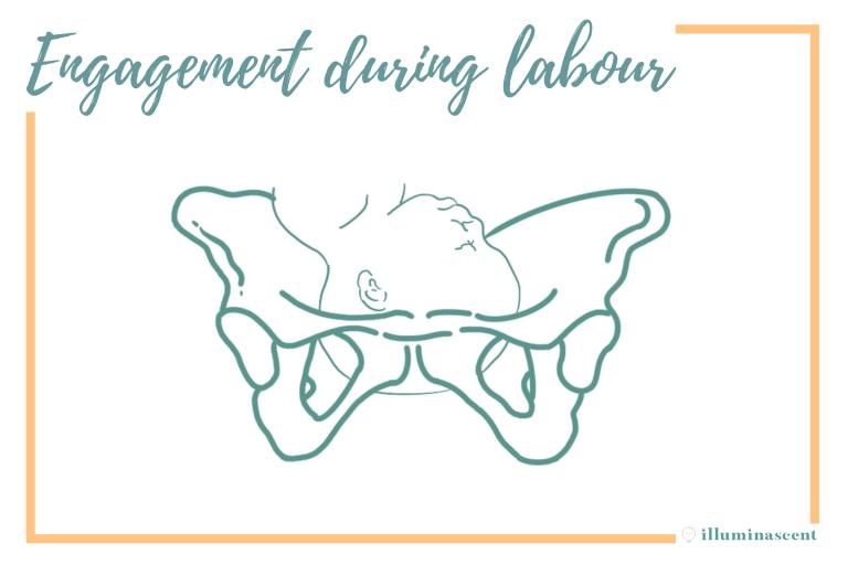 pelvic engagement during labour childbirth